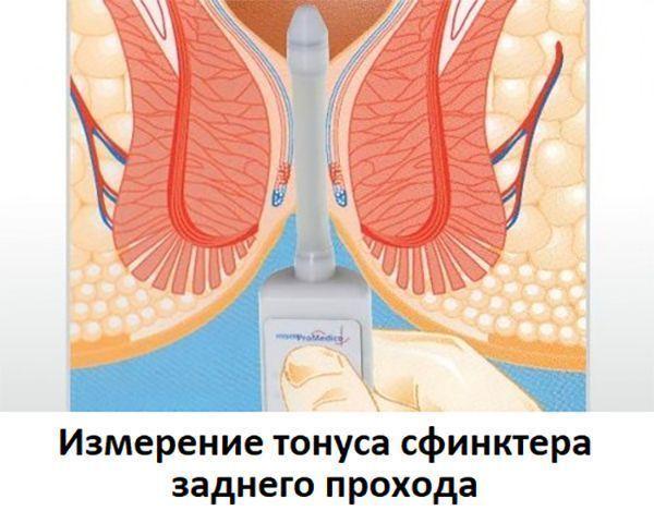 A prosztatitis termex kezelése